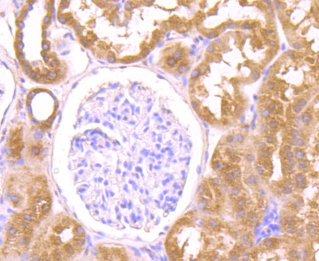 OGT Antibody in Immunohistochemistry (Paraffin) (IHC (P))