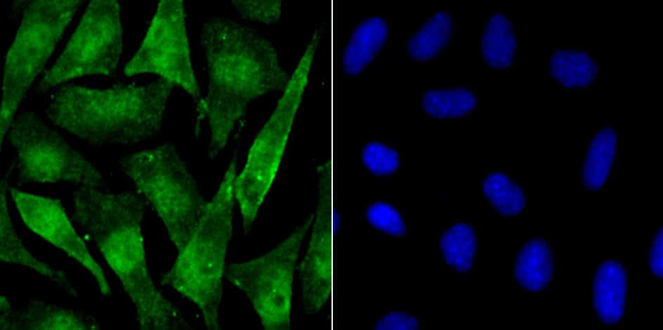 Phospho-alpha Synuclein (Ser129) Antibody in Immunofluorescence (IF)