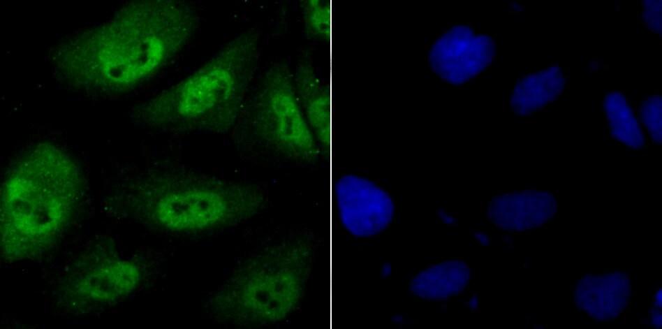 PSMB8 Antibody in Immunofluorescence (IF)