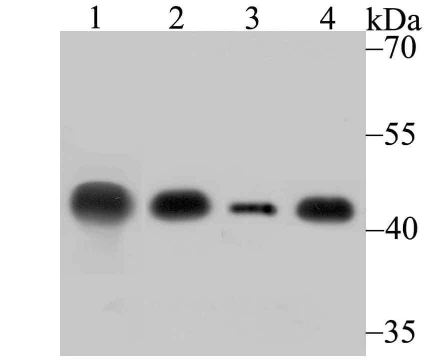 Creatine Kinase MB Antibody in Western Blot (WB)