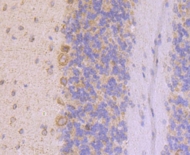 UQCRFS1 Antibody in Immunohistochemistry (Paraffin) (IHC (P))