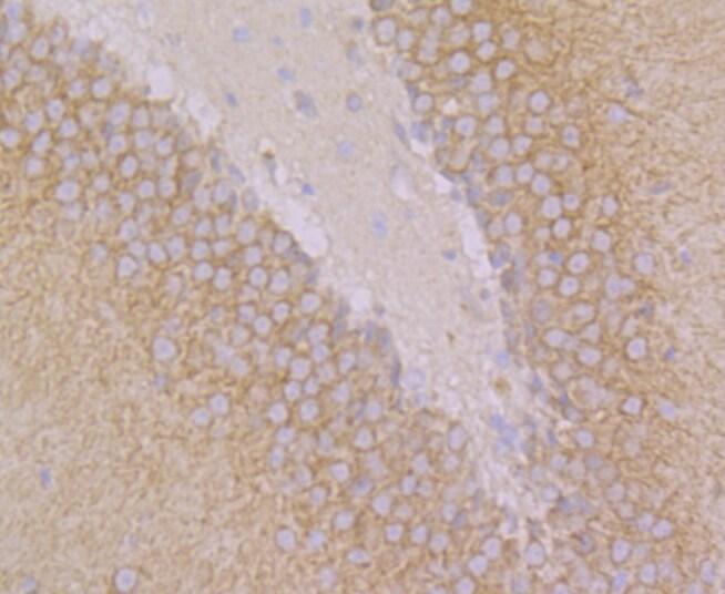 GEF-H1 Antibody in Immunohistochemistry (Paraffin) (IHC (P))