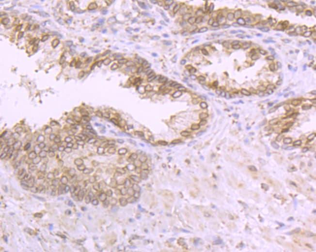 RANGAP1 Antibody in Immunohistochemistry (Paraffin) (IHC (P))