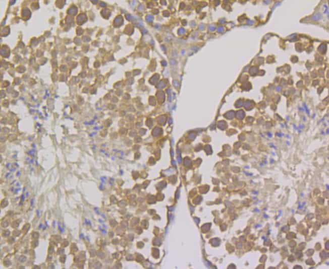 OS9 Antibody in Immunohistochemistry (Paraffin) (IHC (P))