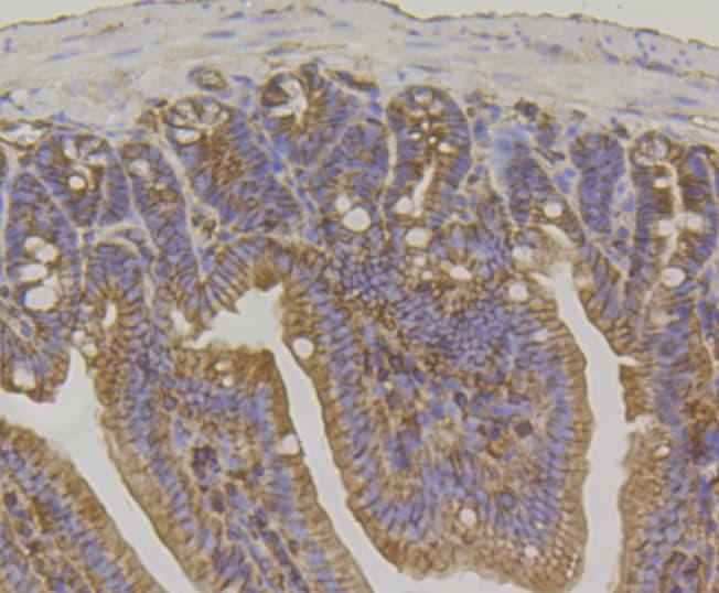 IQGAP1 Antibody in Immunohistochemistry (Paraffin) (IHC (P))