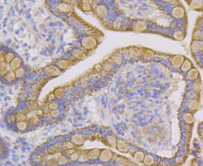 CYP27A1 Antibody in Immunohistochemistry (Paraffin) (IHC (P))