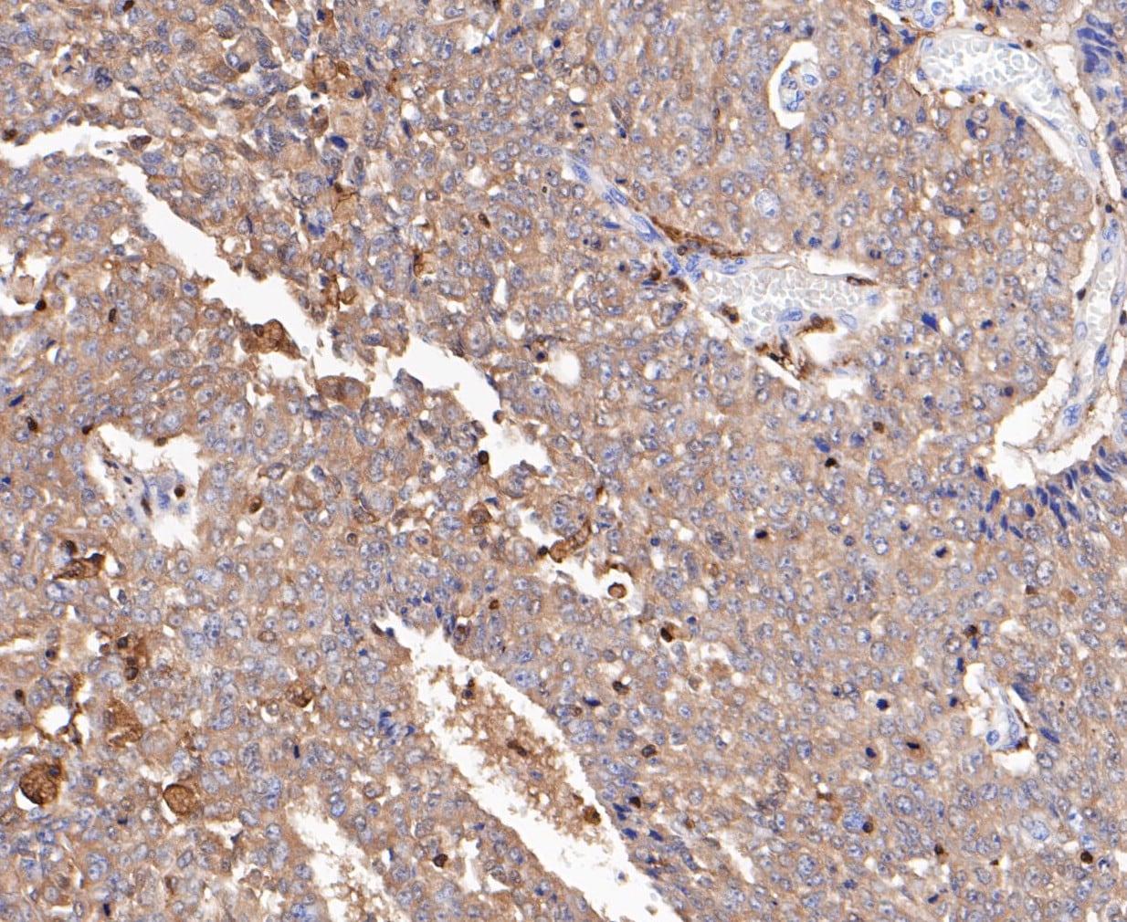 L-Plastin Antibody in Immunohistochemistry (Paraffin) (IHC (P))