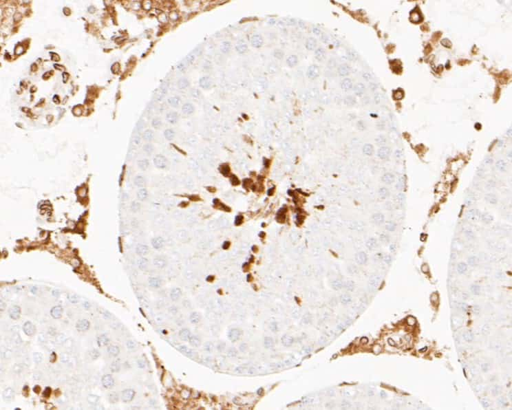 Lamin A/C Antibody in Immunohistochemistry (Paraffin) (IHC (P))