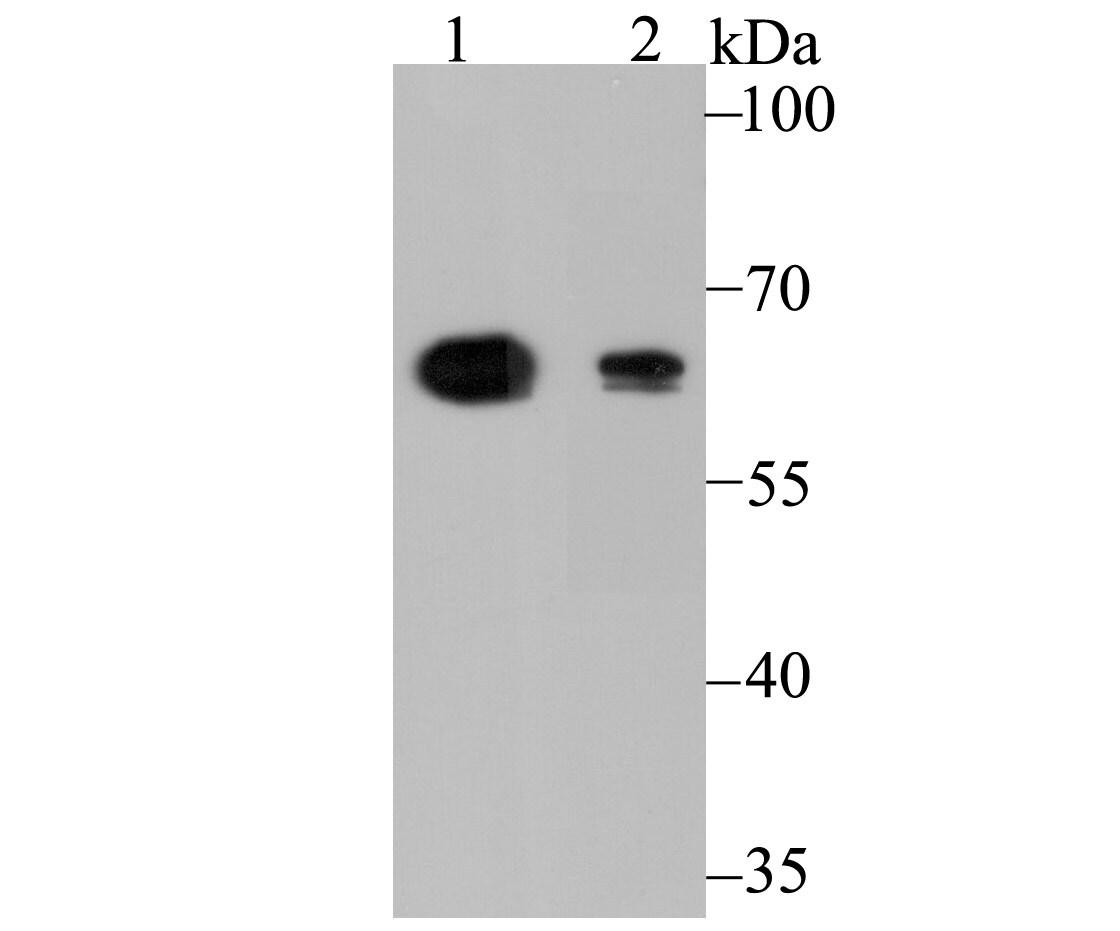 ALDH4A1 Antibody in Western Blot (WB)