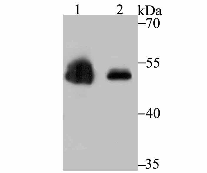 ZSCAN4 Antibody in Western Blot (WB)