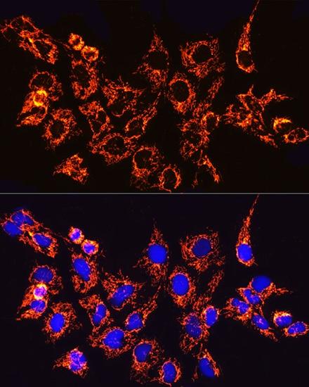 TOM20 Antibody in Immunocytochemistry (ICC)