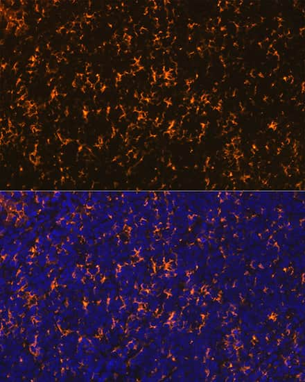 CCR7 Antibody in Immunohistochemistry (IHC)