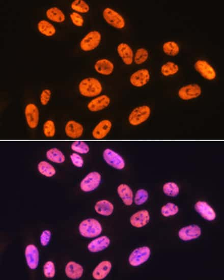 hnRNP K Antibody in Immunocytochemistry (ICC)
