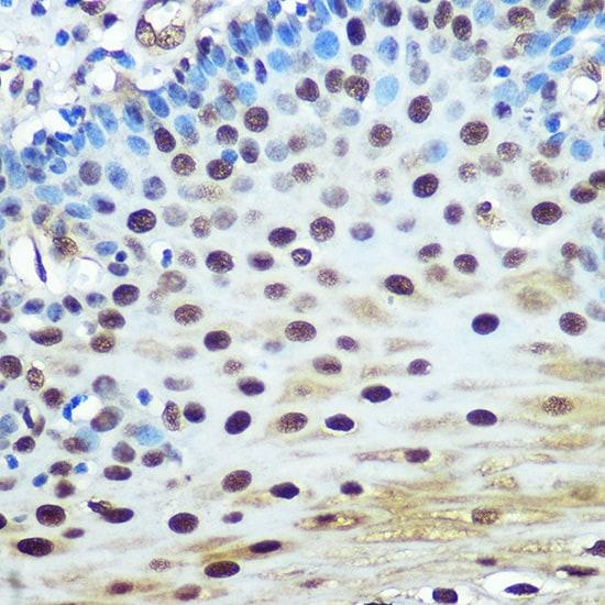 hnRNP K Antibody in Immunohistochemistry (IHC)