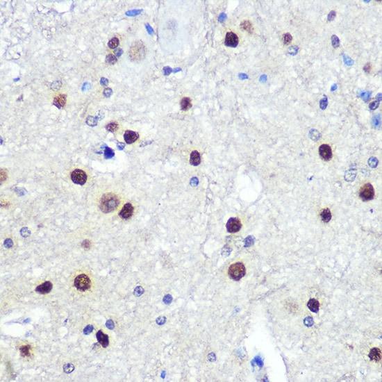 HES1 Antibody in Immunohistochemistry (IHC)