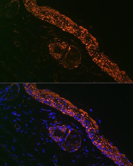 IL1RA Antibody in Immunohistochemistry (IHC)