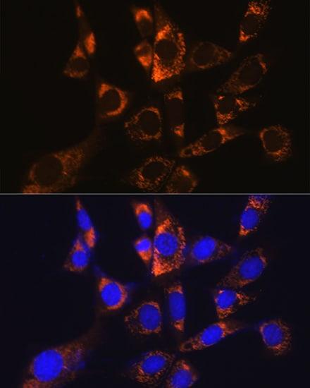 ATP5A1 Antibody in Immunocytochemistry (ICC)