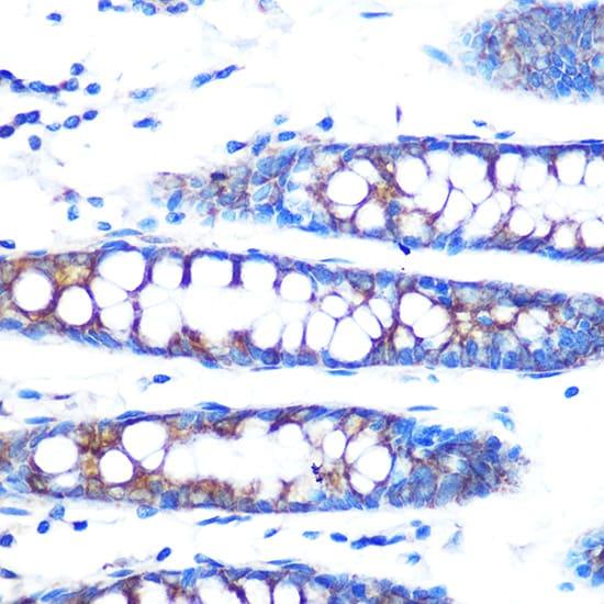 BMP4 Antibody in Immunohistochemistry (IHC)