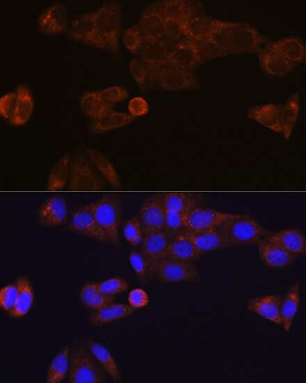 CES1 Antibody in Immunocytochemistry (ICC)