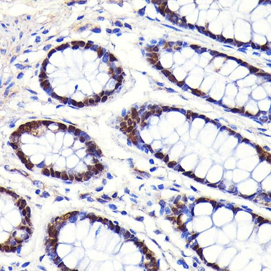 CDX2 Antibody in Immunohistochemistry (IHC)