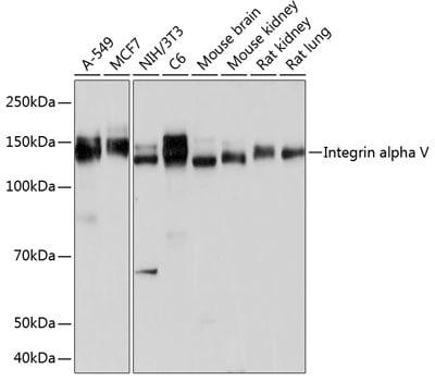 CD51 Antibody in Western Blot (WB)