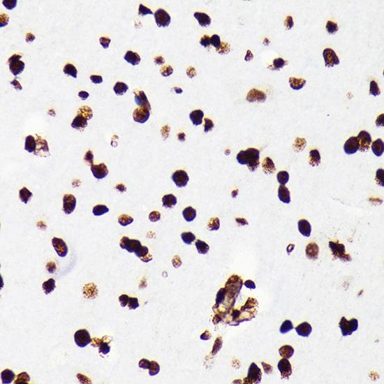 HMGB1 Antibody in Immunohistochemistry (IHC)