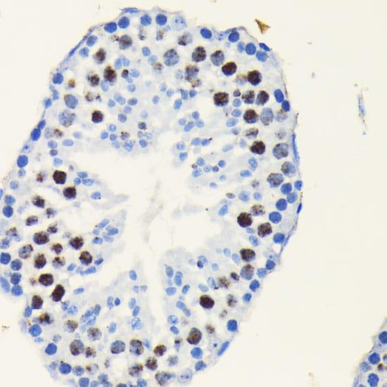TCF7L2 Antibody in Immunohistochemistry (IHC)