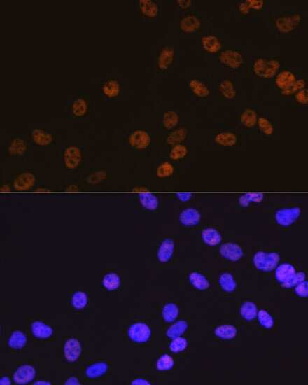 HDAC2 Antibody in Immunocytochemistry (ICC)