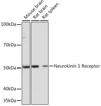 TACR1 Antibody in Western Blot (WB)