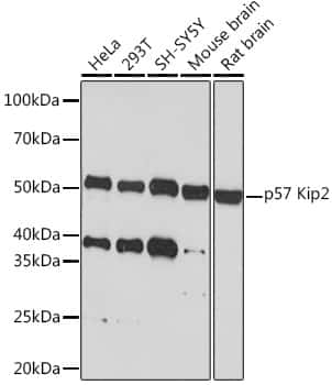 p57 Kip2 Antibody in Western Blot (WB)