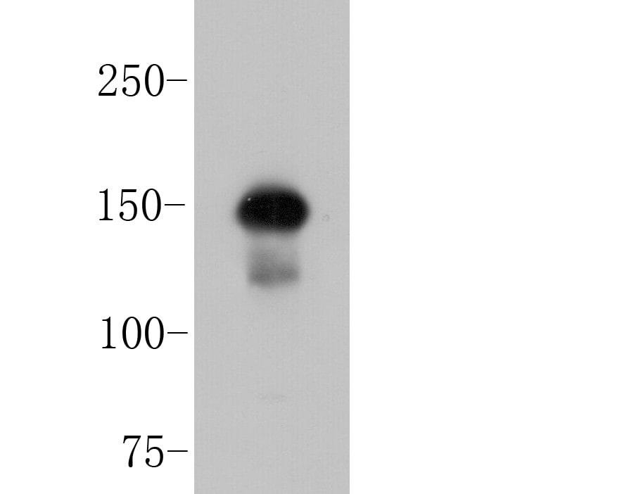 ROBO1 Antibody in Western Blot (WB)