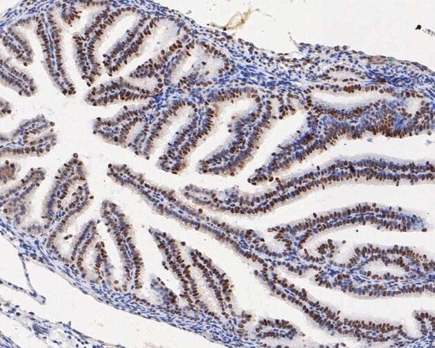 HMGB2 Antibody in Immunohistochemistry (Paraffin) (IHC (P))
