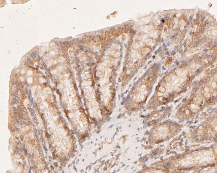 CASK Antibody in Immunohistochemistry (Paraffin) (IHC (P))