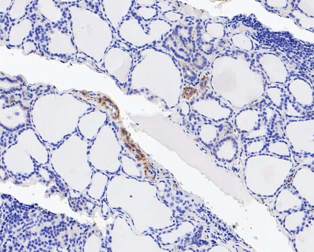 Integrin beta 3 Antibody in Immunohistochemistry (Paraffin) (IHC (P))