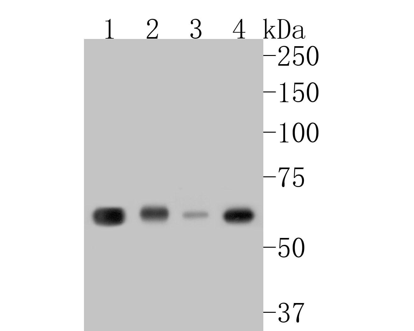 KLC1 Antibody in Western Blot (WB)