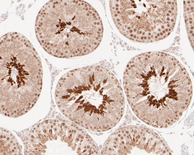 BAT3 Antibody in Immunohistochemistry (Paraffin) (IHC (P))
