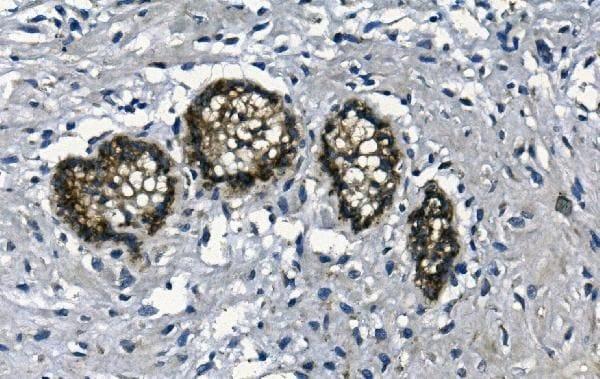 GAA Antibody in Immunohistochemistry (Paraffin) (IHC (P))