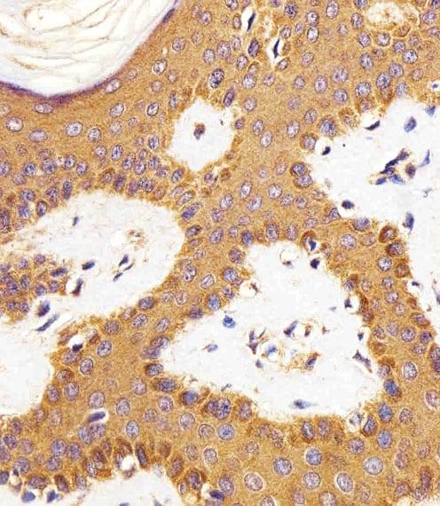 RAC1 Antibody in Immunohistochemistry (Paraffin) (IHC (P))