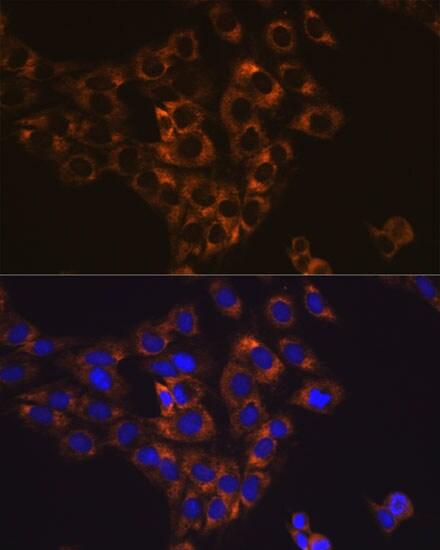 Caspase 6 Antibody in Immunocytochemistry (ICC)