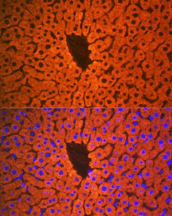 PON1 Antibody in Immunohistochemistry (IHC)