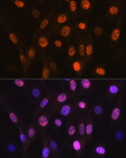 PHAPI2 Antibody in Immunocytochemistry (ICC/IF)