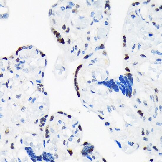 TRBP Antibody in Immunohistochemistry (Paraffin) (IHC (P))