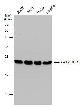 PARK7 Antibody in Western Blot (WB)