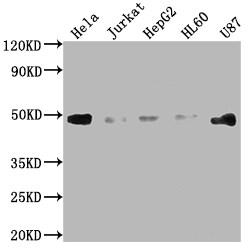 FAS Antibody in Western Blot (WB)