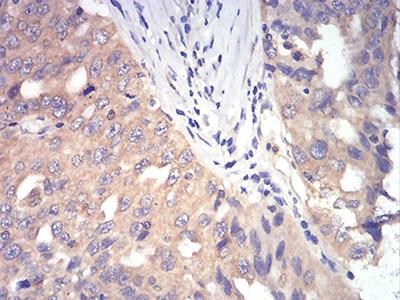 DDX3 Antibody in Immunohistochemistry (Paraffin) (IHC (P))