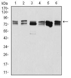 DDX3 Antibody in Western Blot (WB)