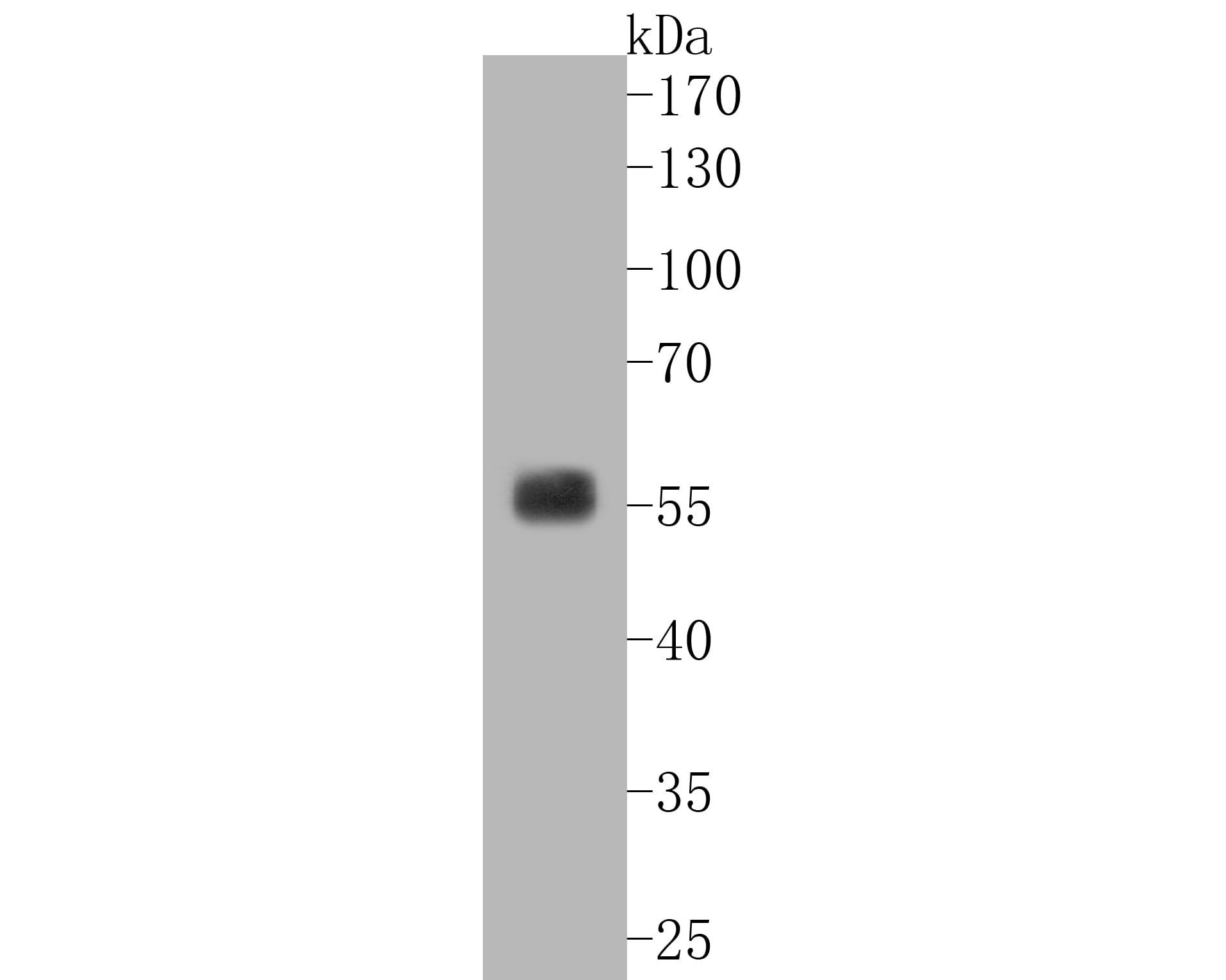 SGK1 Antibody in Western Blot (WB)