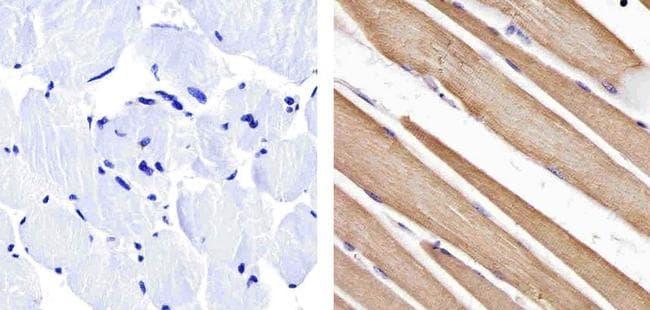 Actin Muscle Antibody in Immunohistochemistry (Paraffin) (IHC (P))