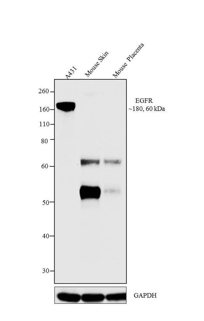 EGFR Antibody in Western Blot (WB)