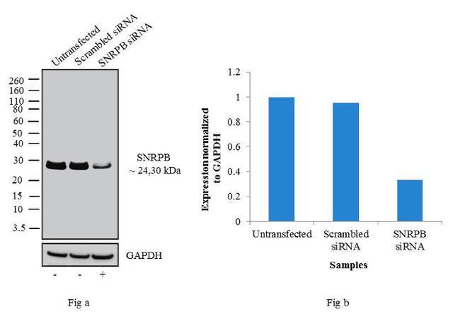 SNRPB Antibody in Western Blot (WB)